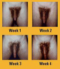 Is Penis Enlargement True 81